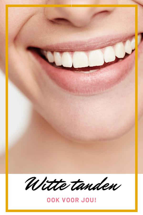 Witte tanden doe je zo